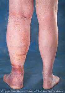 Photo of Diabetes Swollen Leg